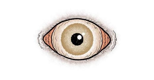 Expo : « Dans l'oeil du Cyclope »